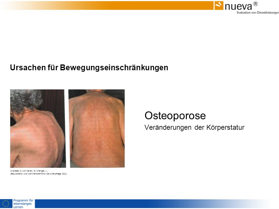 Ursachen für Bewegungseinschränkungen Osteoporose Veränderungen der Körperstatur Andreae, S./von Hayek, D./Weniger, J., Gesundheits- und Krankheitsleh