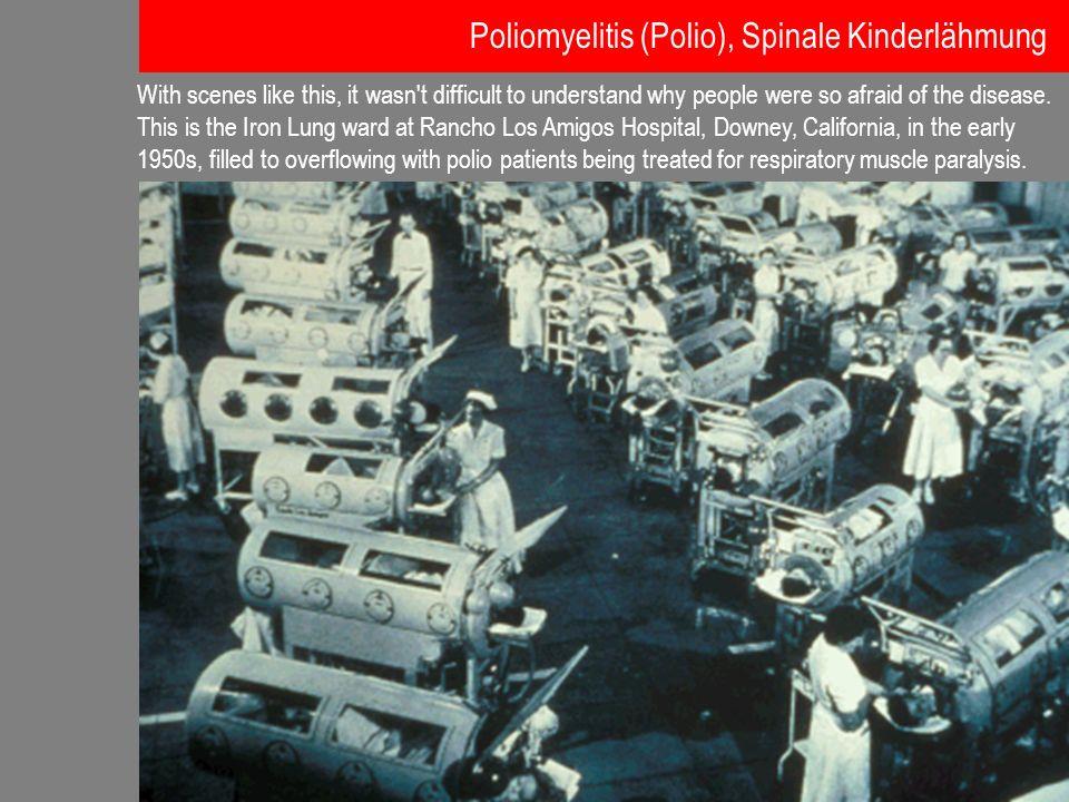1954: Nobelpreis für Medizin und Physiologie an John Franklin Enders, Frederick Chapman Robbins und Thomas Huckle Weller für die Kultivierung des Poliovirus in verschiedenen Geweben Daraufhin war man weitgehend unabhängig von Tierversuchen bei der Forschung nach einem wirkungsvollen Medikament gegen die Polio Poliomyelitis (Polio), Spinale Kinderlähmung Unterstützung dieser Forschung mit Forschungsgeldern der National Foundation for Infantile Paralysis.