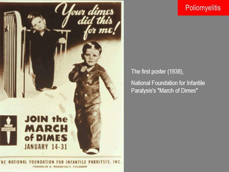 Jonas Edward Salk (1914-1995) 1954: Abtötung von Polioviren und Herstellung eines so genannten Totimpfstoffs, der gegen Poliotypen I, II und III wirkte.