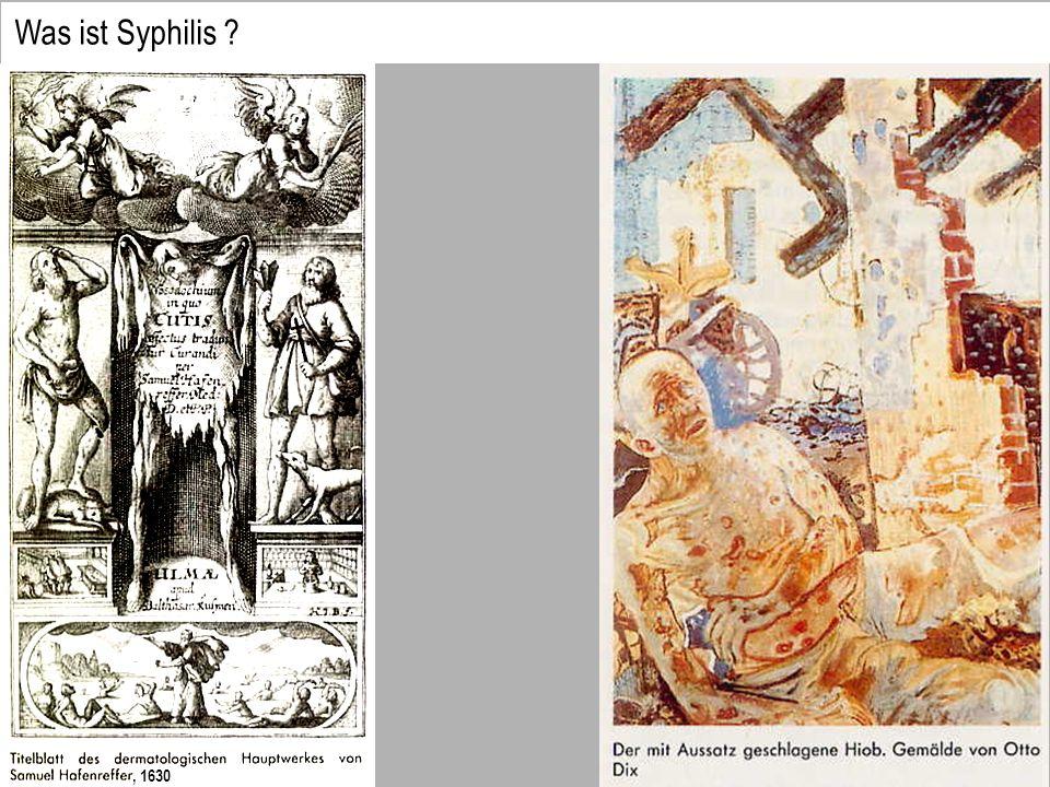 Was ist Syphilis ?, 1630