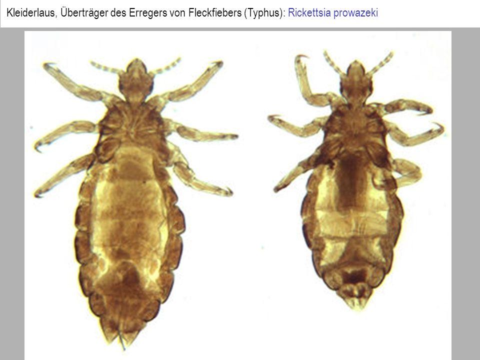 Kleiderlaus, Überträger des Erregers von Fleckfiebers (Typhus): Rickettsia prowazeki