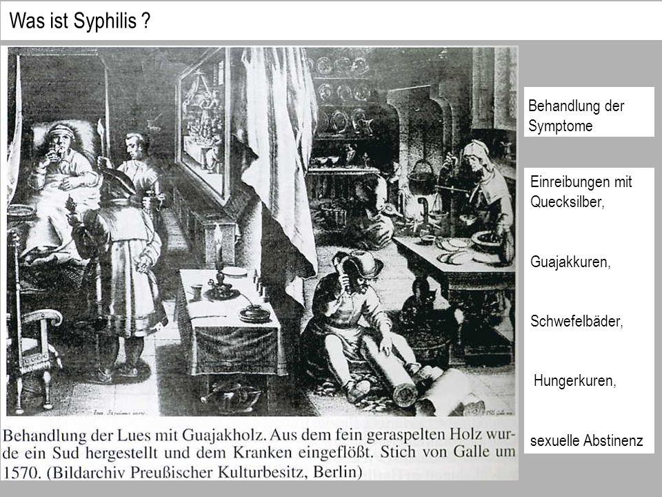 Behandlung der Symptome Einreibungen mit Quecksilber, Guajakkuren, Schwefelbäder, Hungerkuren, sexuelle Abstinenz Was ist Syphilis ?