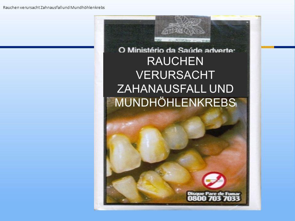 Rauchen verursacht Zahnausfall und Mundhöhlenkrebs RAUCHEN VERURSACHT ZAHANAUSFALL UND MUNDHÖHLENKREBS