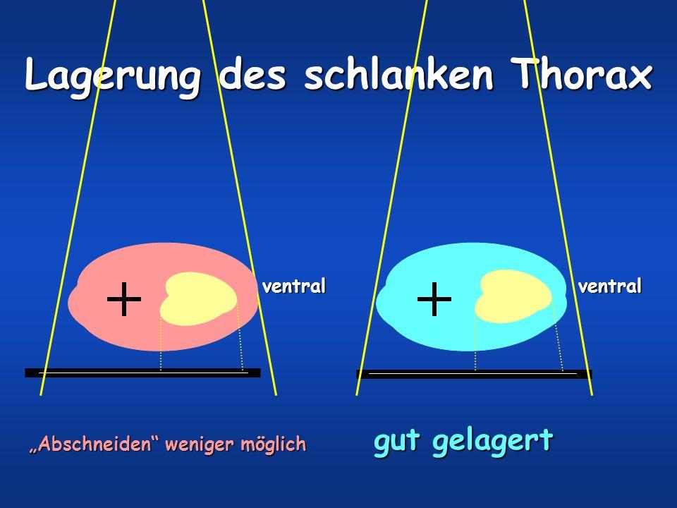 Abschneiden weniger möglich Lagerung des schlanken Thorax gut gelagert ventralventral