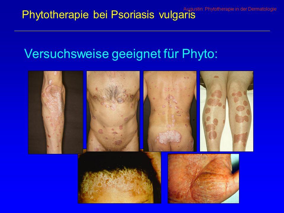 Augustin: Phytotherapie in der Dermatologie Phytotherapie bei Psoriasis vulgaris Versuchsweise geeignet für Phyto: