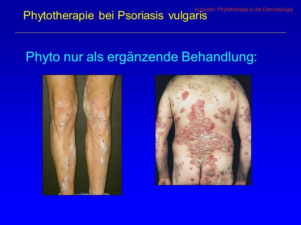 Augustin: Phytotherapie in der Dermatologie Phytotherapie bei Psoriasis vulgaris Phyto nur als ergänzende Behandlung: