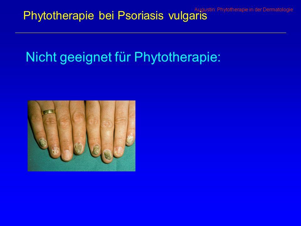 Augustin: Phytotherapie in der Dermatologie Phytotherapie bei Psoriasis vulgaris Nicht geeignet für Phytotherapie: