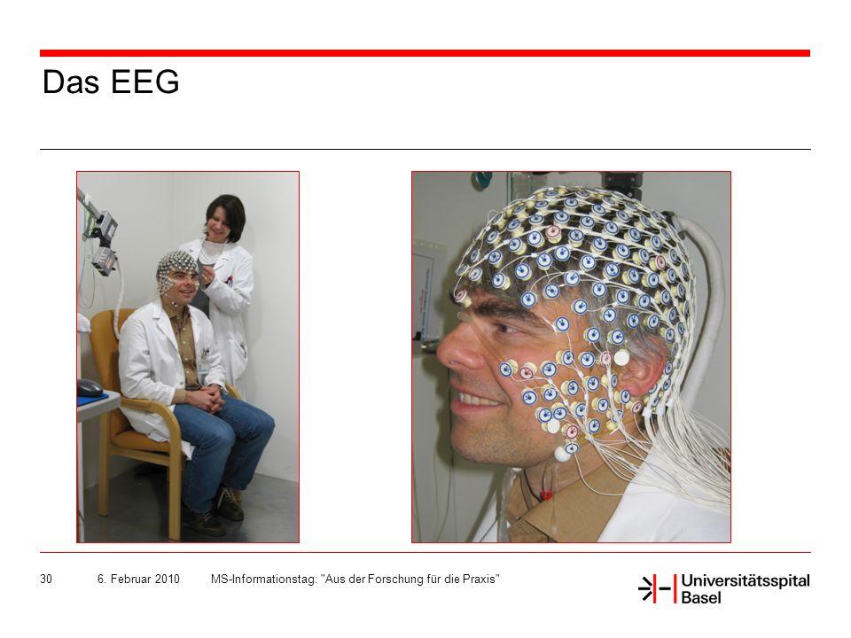 6. Februar 2010MS-Informationstag: Aus der Forschung für die Praxis 30 Das EEG