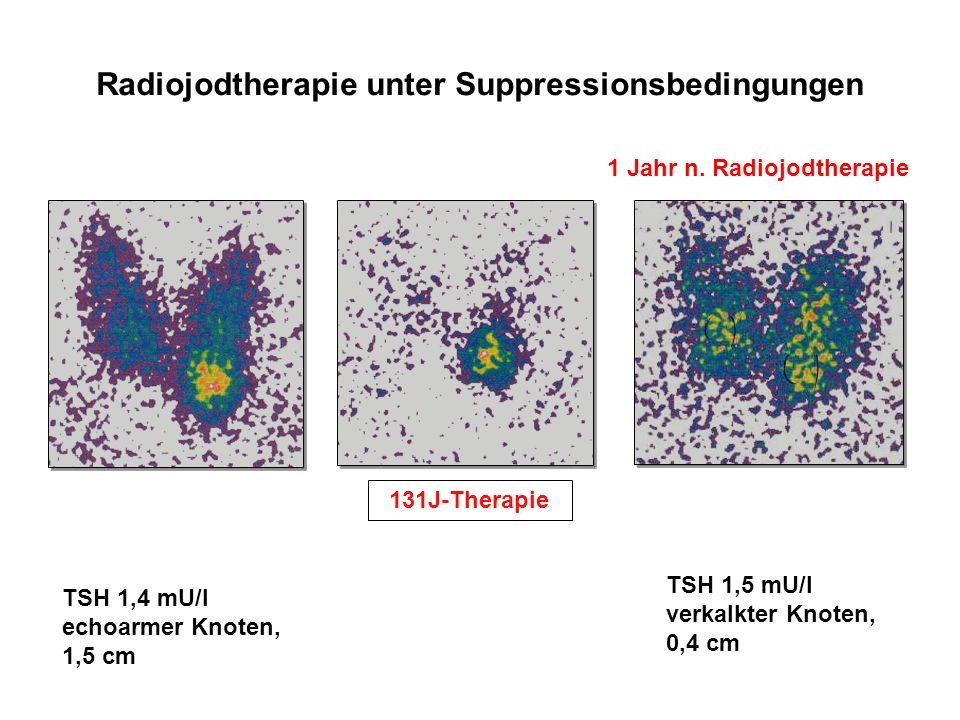 Radiojodtherapie unter Suppressionsbedingungen TSH 1,5 mU/l verkalkter Knoten, 0,4 cm 1 Jahr n. Radiojodtherapie 131J-Therapie TSH 1,4 mU/l echoarmer
