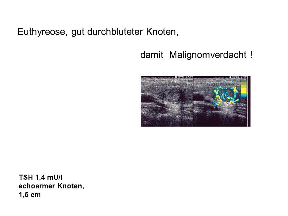 Euthyreose, gut durchbluteter Knoten, damit Malignomverdacht ! TSH 1,4 mU/l echoarmer Knoten, 1,5 cm