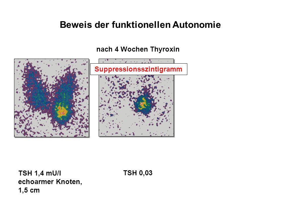 Beweis der funktionellen Autonomie nach 4 Wochen Thyroxin Suppressionsszintigramm TSH 1,4 mU/l echoarmer Knoten, 1,5 cm TSH 0,03
