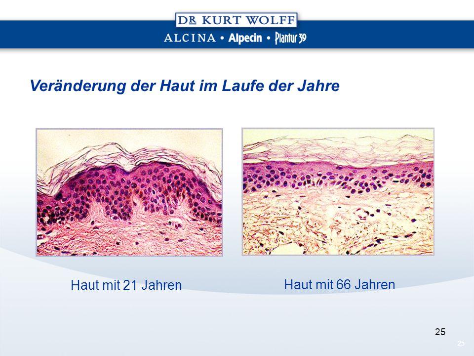 25 Haut mit 21 Jahren Haut mit 66 Jahren Veränderung der Haut im Laufe der Jahre