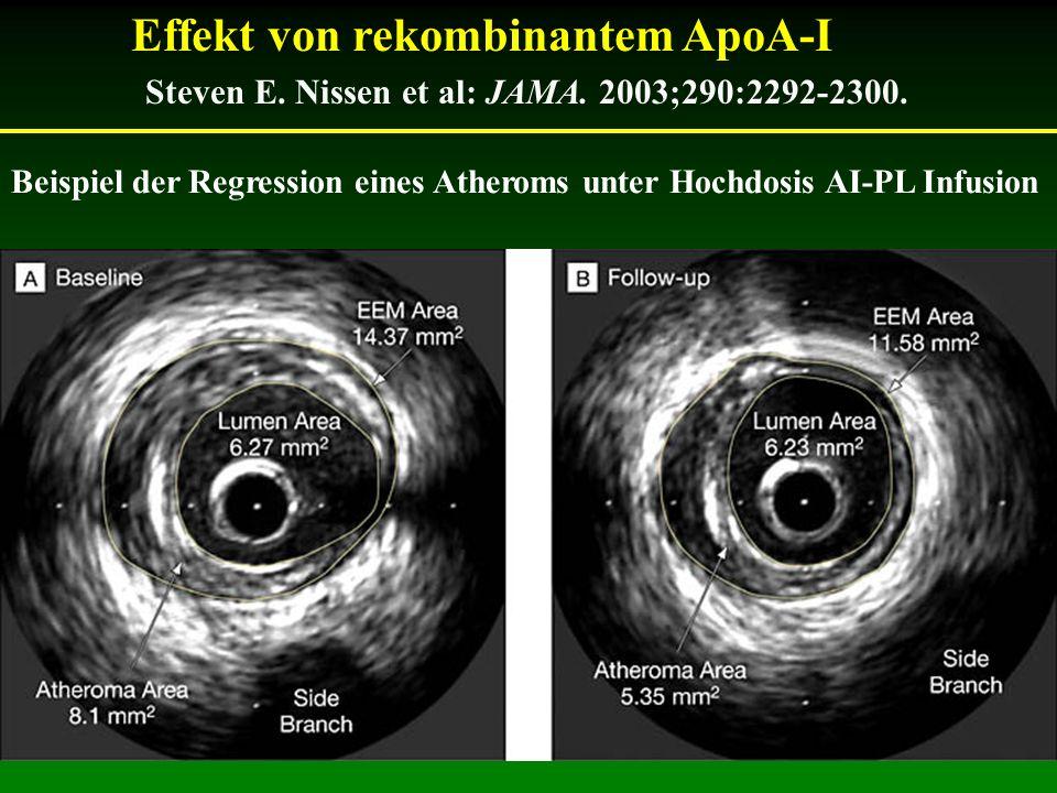 Beispiel der Regression eines Atheroms unter Hochdosis AI-PL Infusion Steven E. Nissen et al: JAMA. 2003;290:2292-2300. Effekt von rekombinantem ApoA-