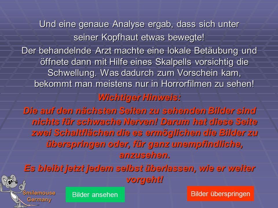 Smilemouse Germany Und eine genaue Analyse ergab, dass sich unter seiner Kopfhaut etwas bewegte! Der behandelnde Arzt machte eine lokale Betäubung und
