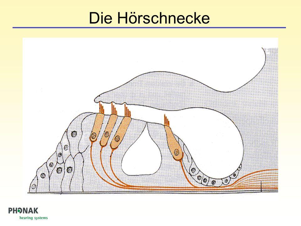 Gehör verstimmt und verzerrt Sprache hörbar, aber nicht verstehbar Lautes wird schneller zu laut Intakte Cochlea Geschädigte Cochlea Was ist Schwerhörigkeit?