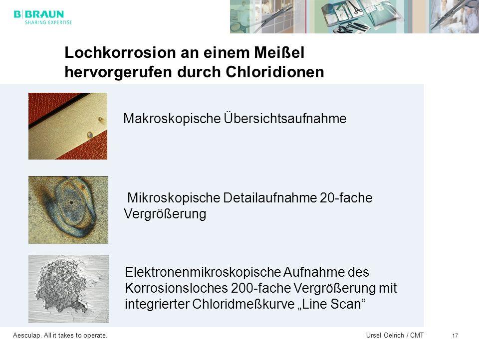 Aesculap. All it takes to operate. Ursel Oelrich / CMT 17 Lochkorrosion an einem Meißel hervorgerufen durch Chloridionen Makroskopische Übersichtsaufn