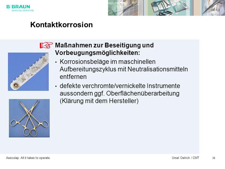 Aesculap. All it takes to operate. Ursel Oelrich / CMT 35 Kontaktkorrosion Maßnahmen zur Beseitigung und Vorbeugungsmöglichkeiten: Korrosionsbeläge im