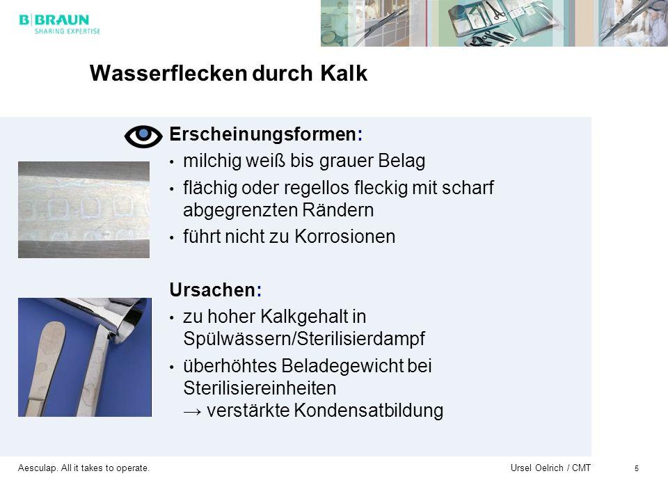 Aesculap. All it takes to operate. Ursel Oelrich / CMT 5 Wasserflecken durch Kalk Erscheinungsformen: milchig weiß bis grauer Belag flächig oder regel
