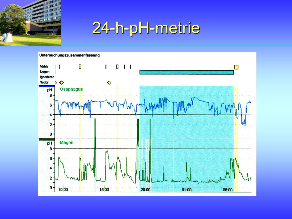 24-h-pH-metrie