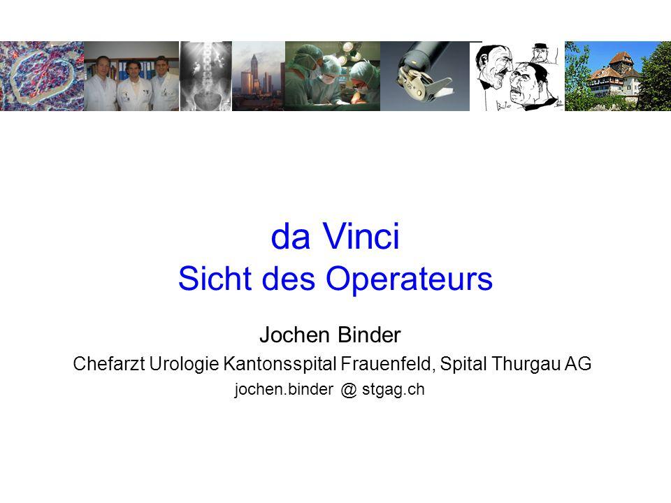 da Vinci Sicht des Operateurs Jochen Binder Chefarzt Urologie Kantonsspital Frauenfeld, Spital Thurgau AG jochen.binder @ stgag.ch