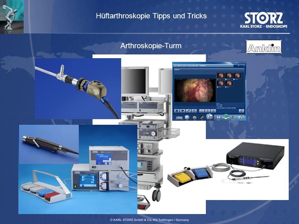 Arthroskopie-Turm Hüftarthroskopie Tipps und Tricks