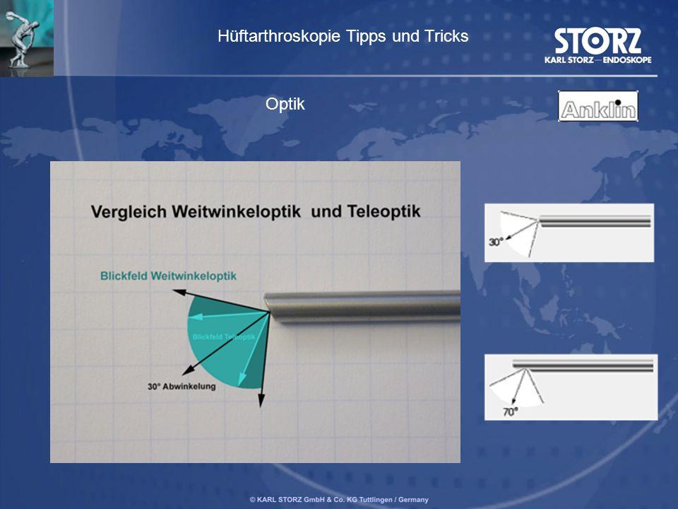 Optik Hüftarthroskopie Tipps und Tricks
