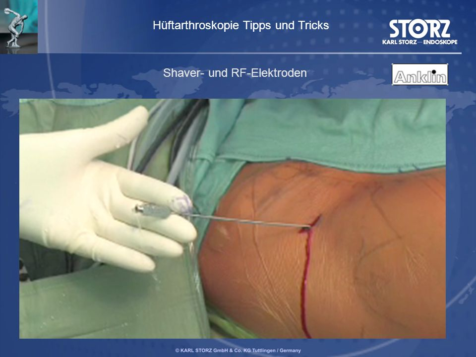 Hüftarthroskopie Tipps und Tricks Shaver- und RF-Elektroden