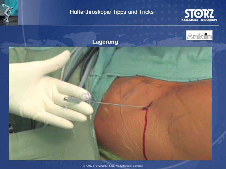 Lagerung Hüftarthroskopie Tipps und Tricks