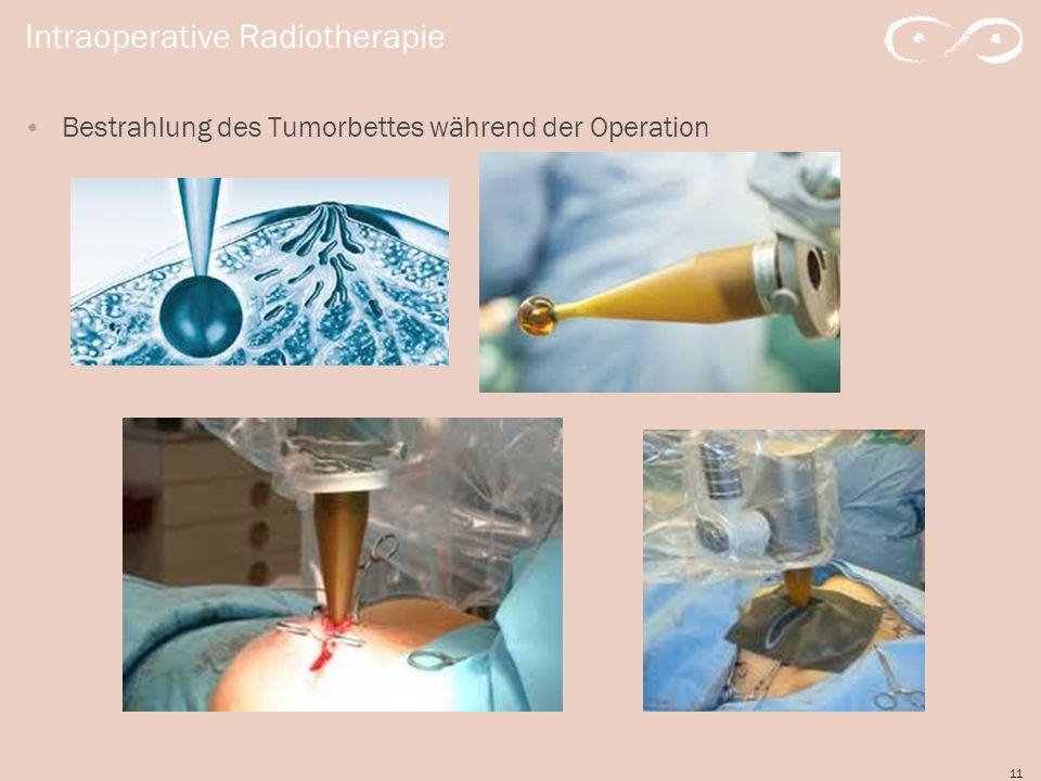 11 Intraoperative Radiotherapie Bestrahlung des Tumorbettes während der Operation