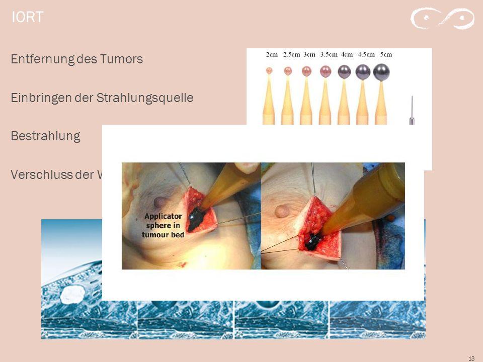 13 IORT Entfernung des Tumors Einbringen der Strahlungsquelle Bestrahlung Verschluss der Wunde
