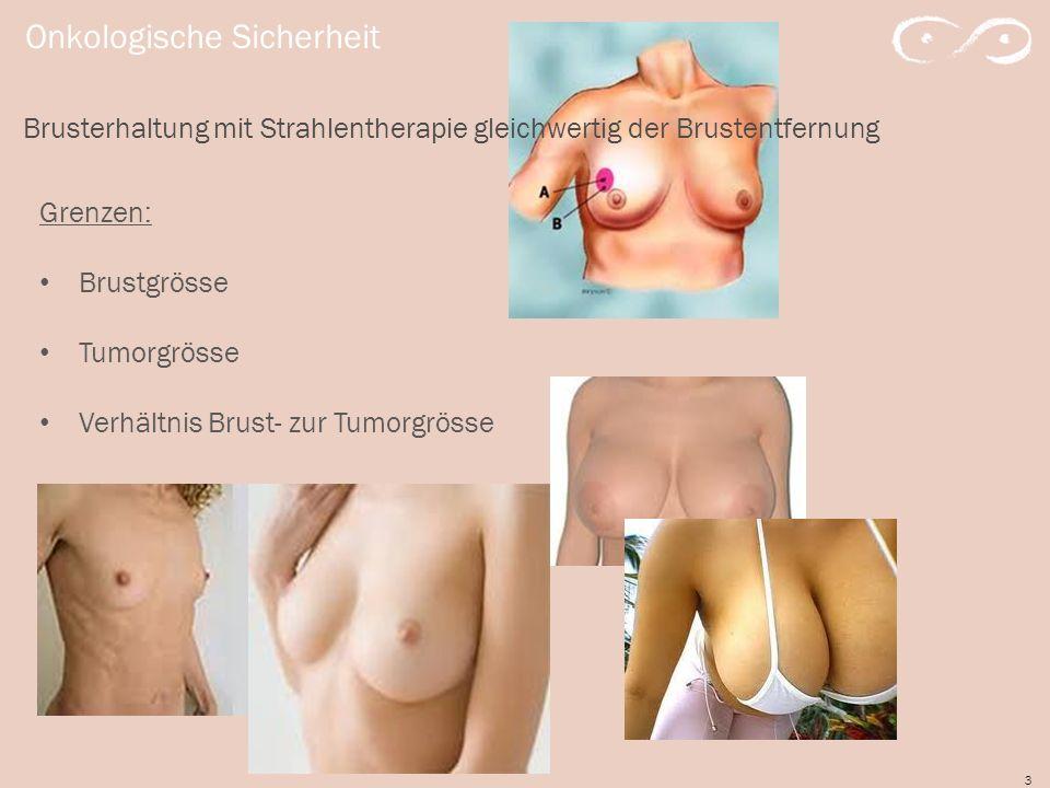 3 Onkologische Sicherheit Brusterhaltung mit Strahlentherapie gleichwertig der Brustentfernung Grenzen: Brustgrösse Tumorgrösse Verhältnis Brust- zur