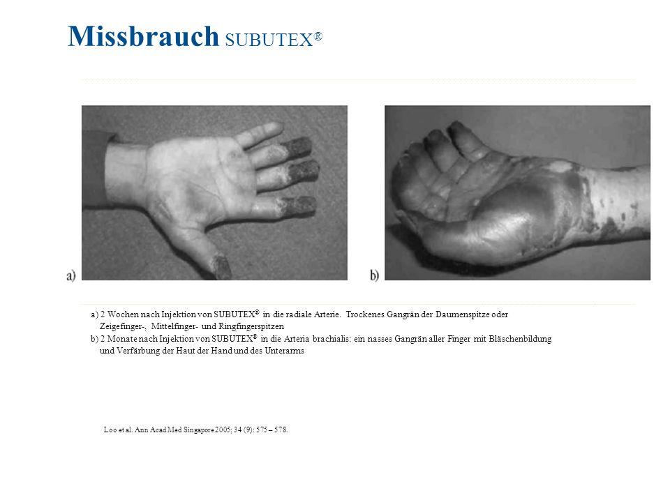 Loo et al. Ann Acad Med Singapore 2005; 34 (9): 575 – 578. Missbrauch SUBUTEX ® a) 2 Wochen nach Injektion von SUBUTEX ® in die radiale Arterie. Trock