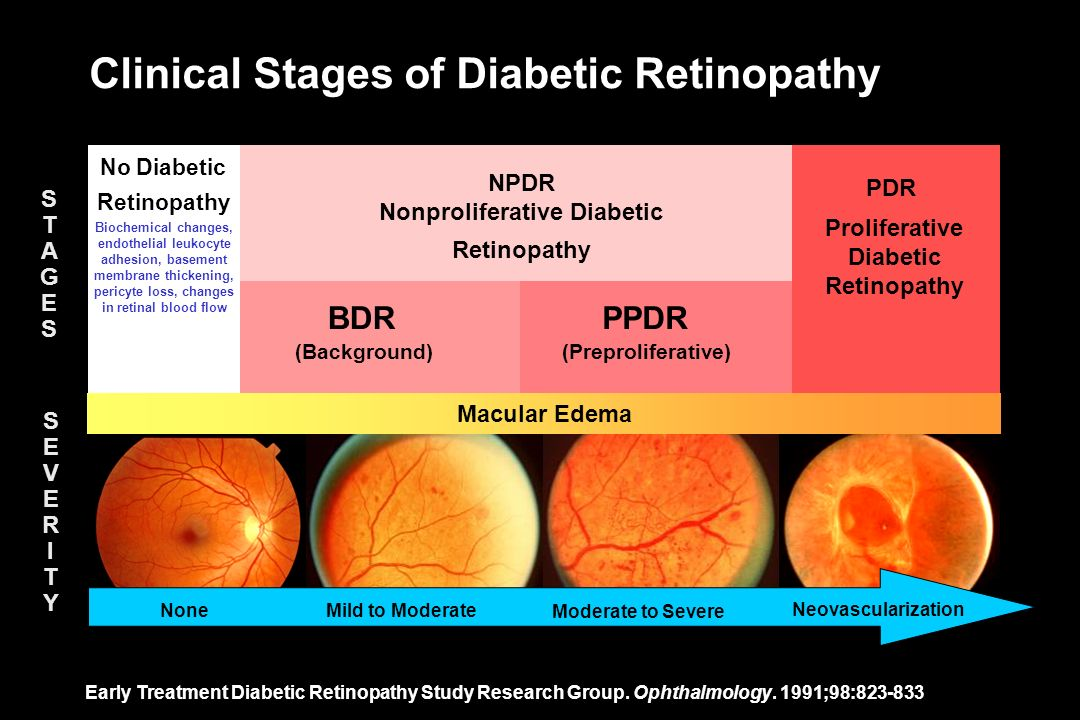 Clinical Stages of Diabetic Retinopathy Early Treatment Diabetic Retinopathy Study Research Group. Ophthalmology. 1991;98:823-833 BDRPPDR PDR (Backgro