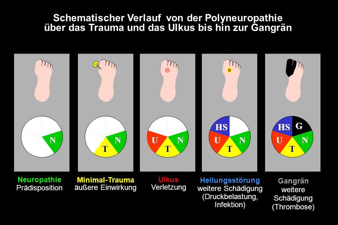 Schematischer Verlauf von der Polyneuropathie über das Trauma und das Ulkus bis hin zur Gangrän T NNN TT UNNU HS Neuropathie Prädisposition T Minimal-