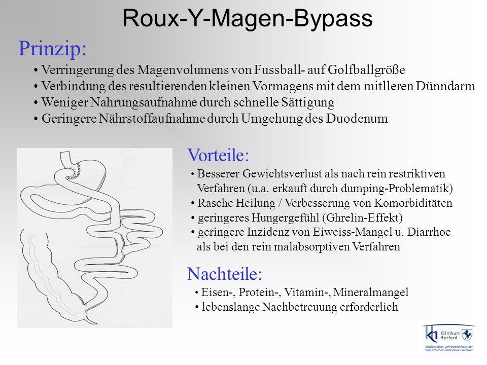 Roux-Y-Magen-Bypass Prinzip: Verringerung des Magenvolumens von Fussball- auf Golfballgröße Verbindung des resultierenden kleinen Vormagens mit dem mi