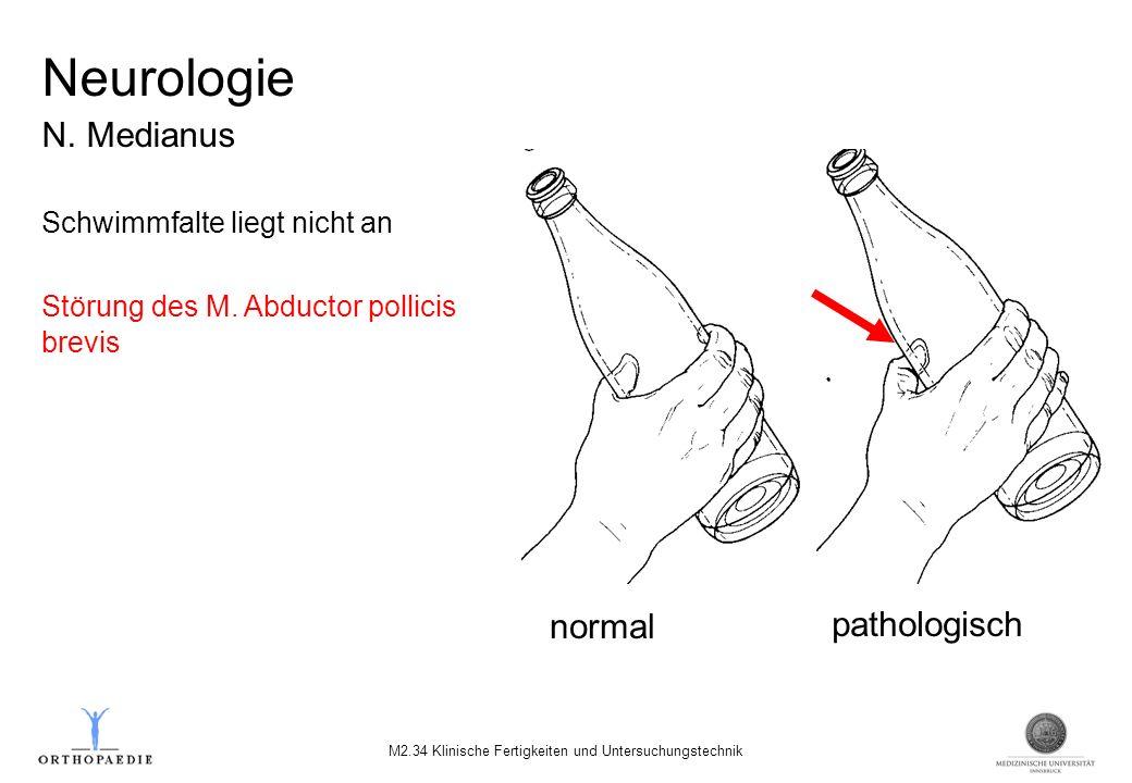 Neurologie N. Medianus Schwimmfalte liegt nicht an Störung des M. Abductor pollicis brevis normal pathologisch M2.34 Klinische Fertigkeiten und Unters