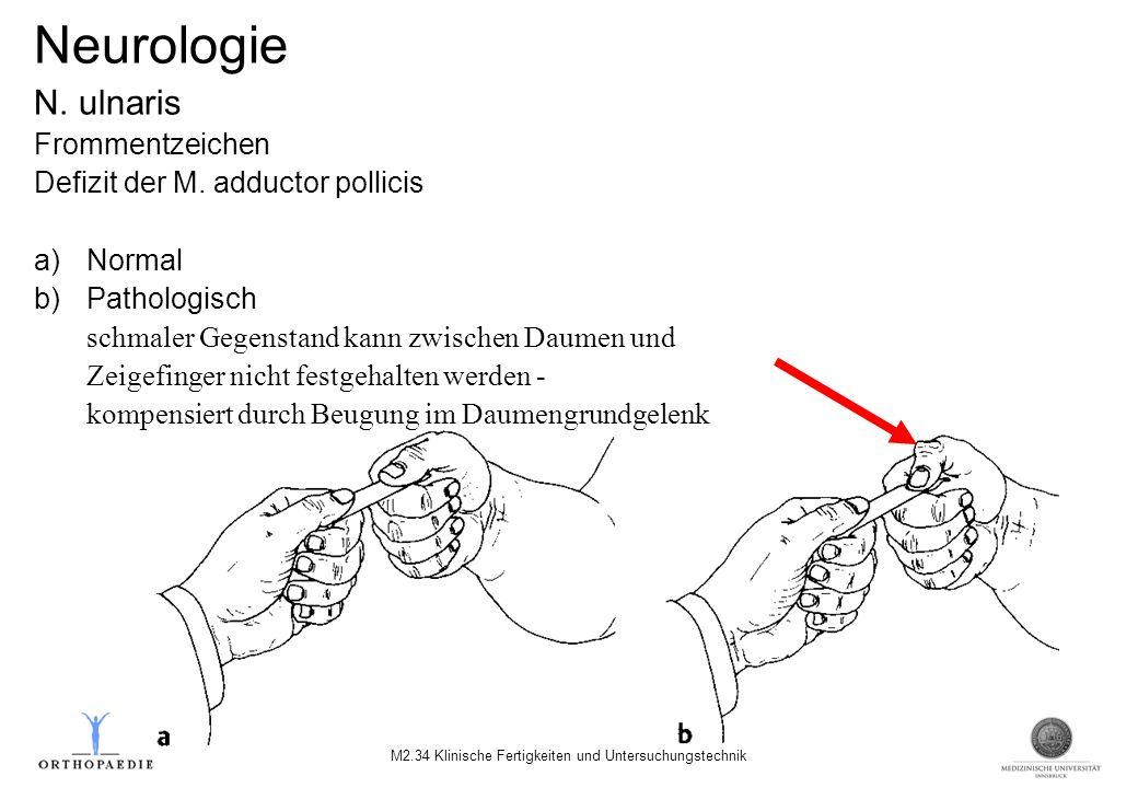 Neurologie N. ulnaris Frommentzeichen Defizit der M. adductor pollicis a)Normal b)Pathologisch schmaler Gegenstand kann zwischen Daumen und Zeigefinge