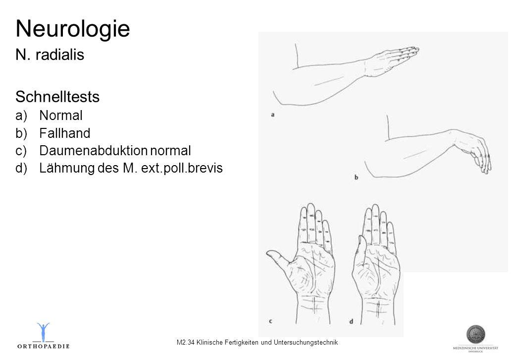 Neurologie N. radialis Schnelltests a)Normal b)Fallhand c)Daumenabduktion normal d)Lähmung des M. ext.poll.brevis M2.34 Klinische Fertigkeiten und Unt