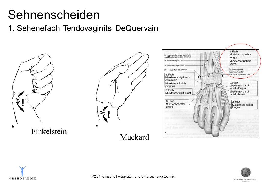 Finkelstein Muckard Sehnenscheiden 1. Sehenefach Tendovaginits DeQuervain M2.34 Klinische Fertigkeiten und Untersuchungstechnik