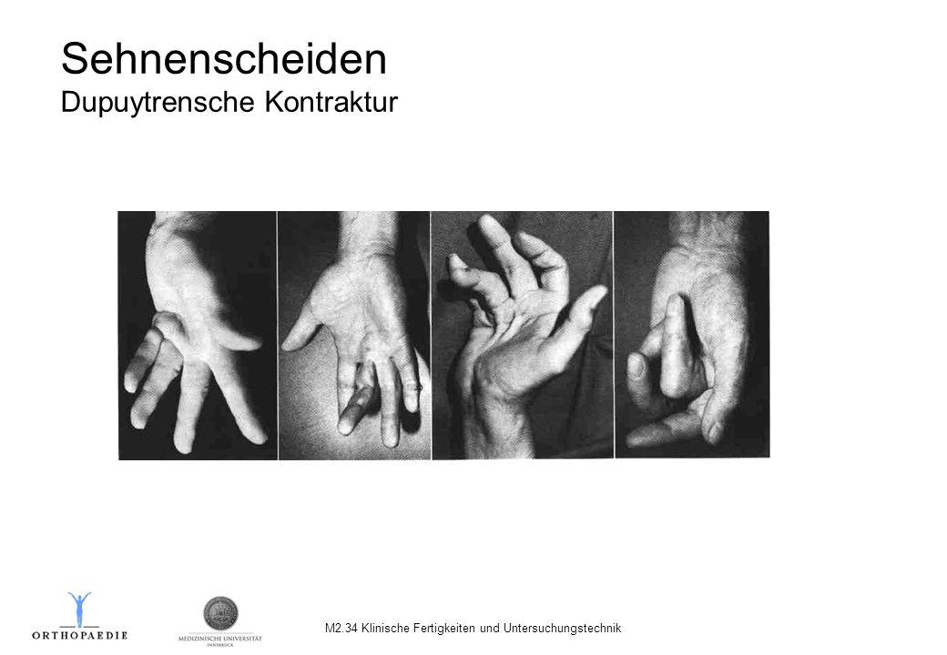 Sehnenscheiden Dupuytrensche Kontraktur M2.34 Klinische Fertigkeiten und Untersuchungstechnik