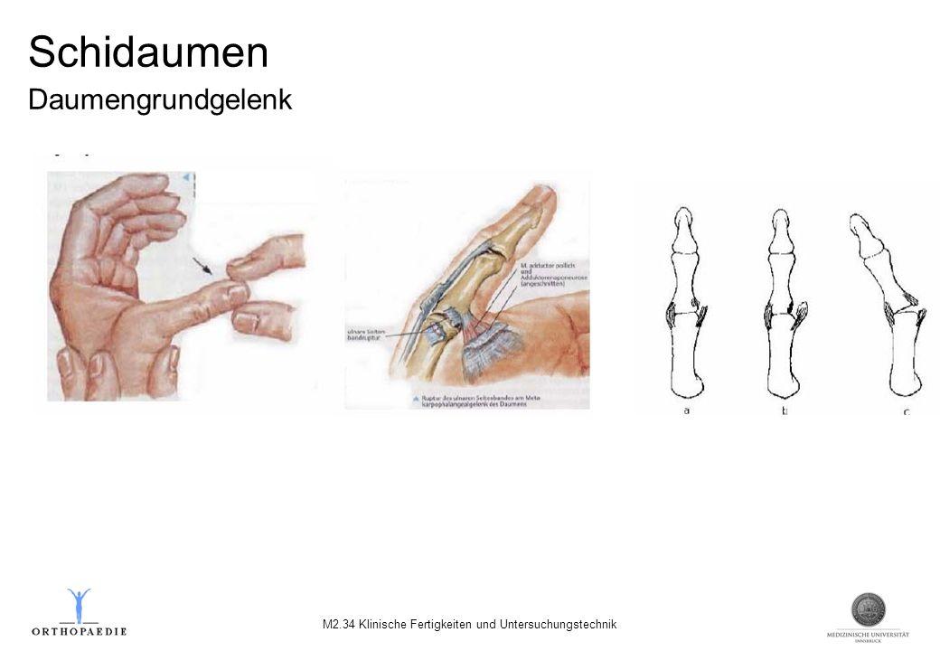 Schidaumen Daumengrundgelenk M2.34 Klinische Fertigkeiten und Untersuchungstechnik