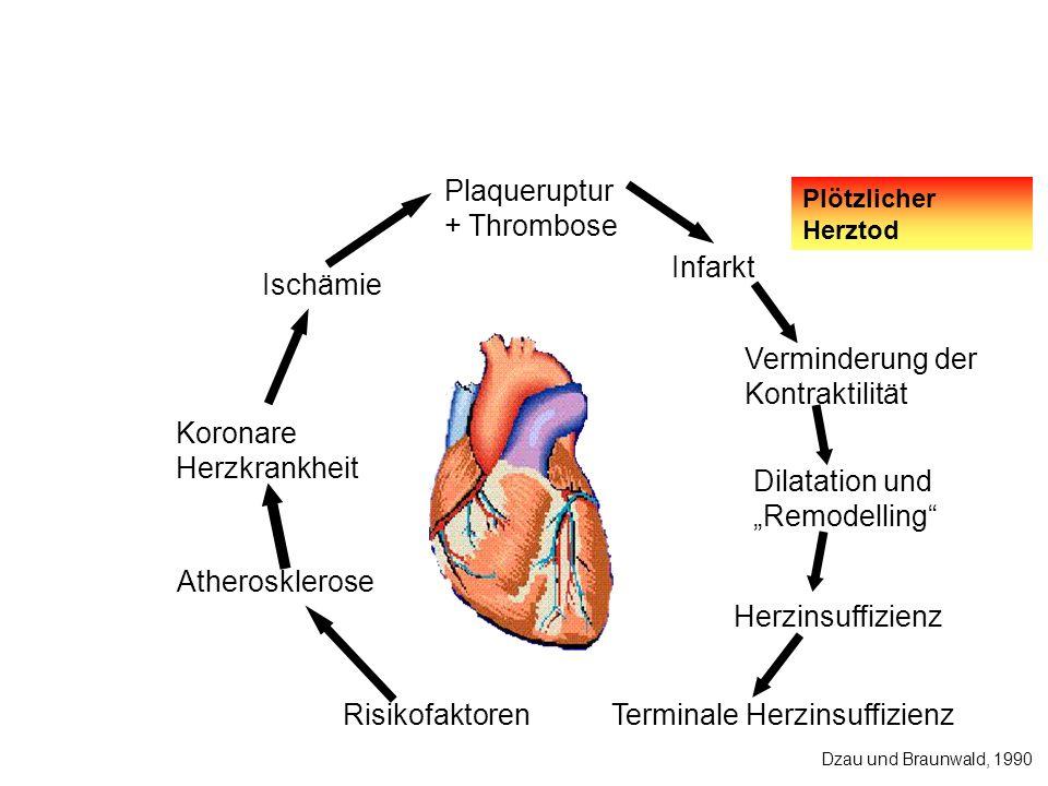 Risikofaktoren Atherosklerose Koronare Herzkrankheit Ischämie Plaqueruptur + Thrombose Infarkt Verminderung der Kontraktilität Dilatation und Remodell