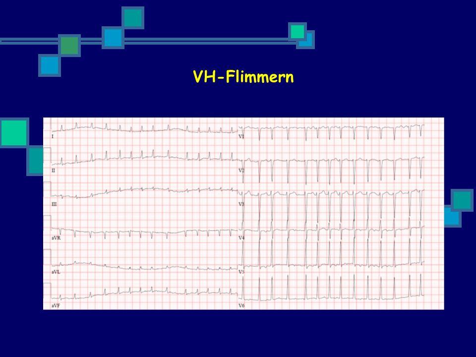 Anter, E. et al. Circulation 2009;119:2516-2525 CHI und VH-Fli Risiko