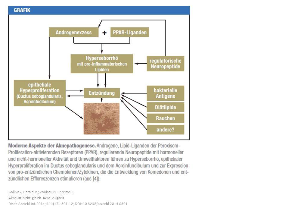 Gollnick, Harald P.; Zouboulis, Christos C. Akne ist nicht gleich Acne vulgaris Dtsch Arztebl Int 2014; 111(17): 301-12; DOI: 10.3238/arztebl.2014.030