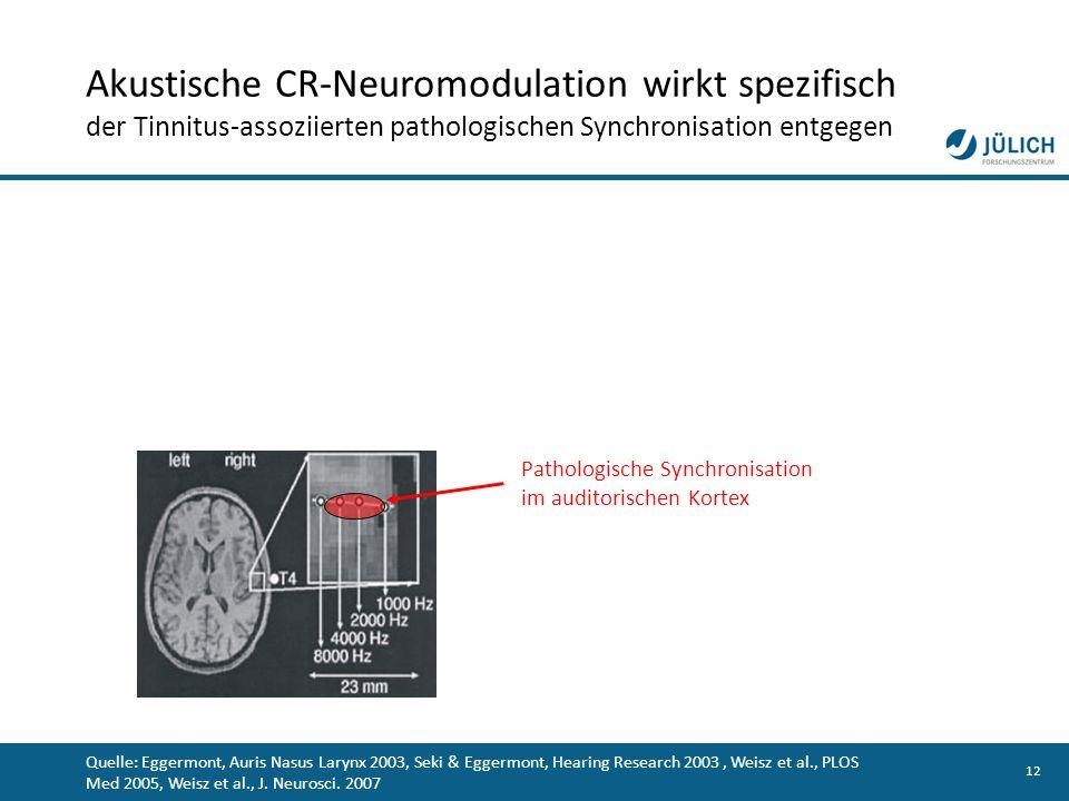 12 Pathologische Synchronisation im auditorischen Kortex Quelle: Eggermont, Auris Nasus Larynx 2003, Seki & Eggermont, Hearing Research 2003, Weisz et