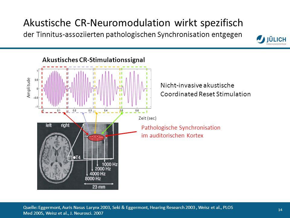 14 Pathologische Synchronisation im auditorischen Kortex Quelle: Eggermont, Auris Nasus Larynx 2003, Seki & Eggermont, Hearing Research 2003, Weisz et
