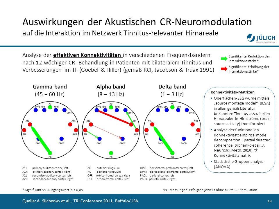 19 Auswirkungen der Akustischen CR-Neuromodulation auf die Interaktion im Netzwerk Tinnitus-relevanter Hirnareale Analyse der effektiven Konnektivität