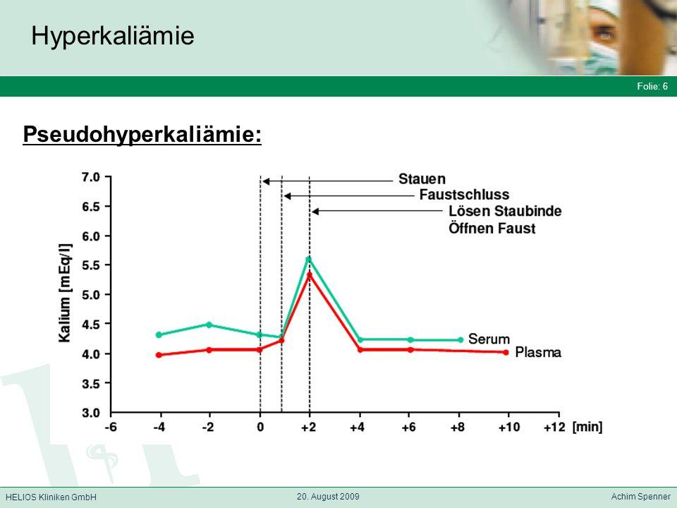 Folie: 6 HELIOS Kliniken GmbH Hyperkaliämie Folie: 6 20. August 2009 Achim Spenner HELIOS Kliniken GmbH Pseudohyperkaliämie: