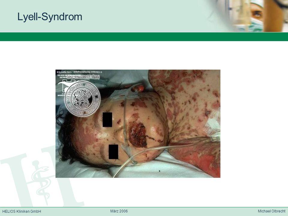 HELIOS Kliniken GmbH März 2006 Michael Olbrecht Lyell-Syndrom