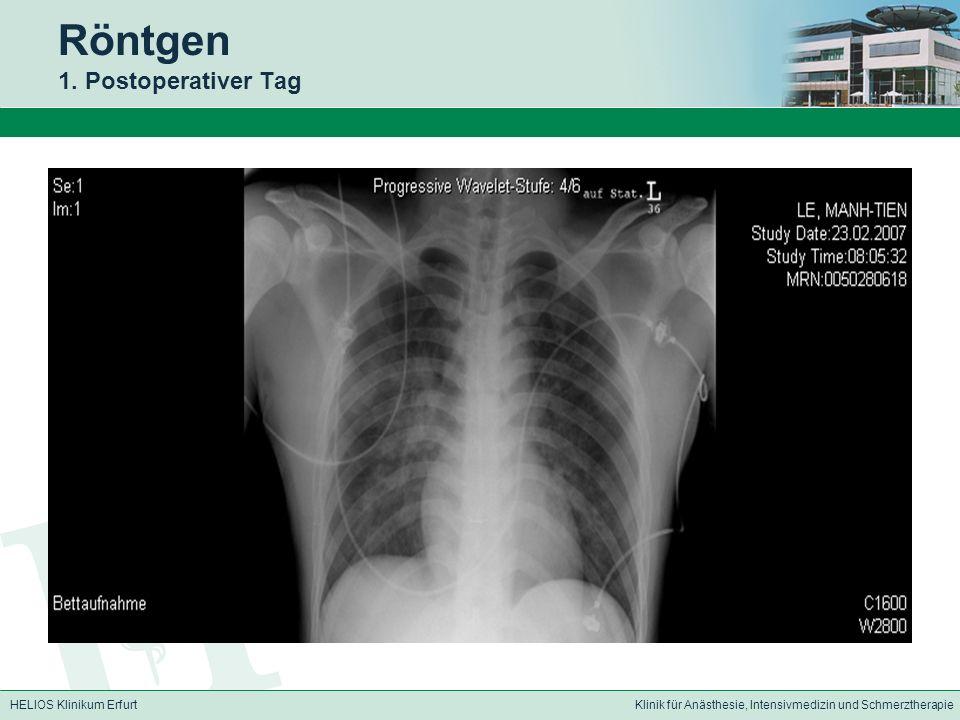 HELIOS Klinikum ErfurtKlinik für Anästhesie, Intensivmedizin und Schmerztherapie Röntgen 1.